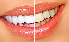 Tratamientos de blanqueamiento dental cl nica de est tica blanqueamiento dental y odontolog a - Clinica dental castellana ...