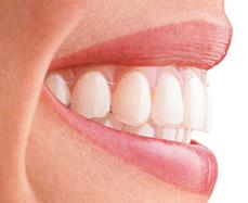 Invisalign cl nica de est tica blanqueamiento dental y odontolog a castellana 100 madrid - Clinica dental castellana ...